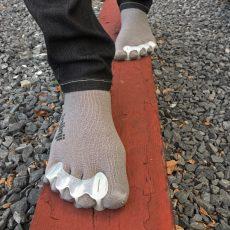 Natural Foot Movement Reverses Plantar Fasciitis